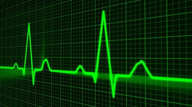 pulse-trace-163708_1280.jpg